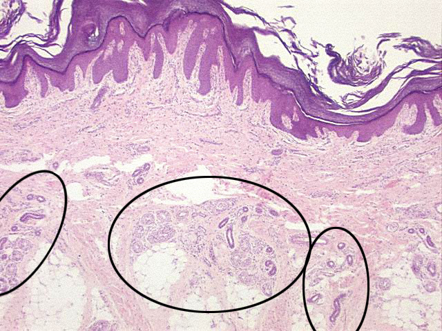 Chapter 13, Page 7 - HistologyOLM
