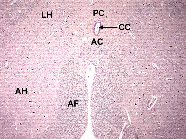 Spinal Cord Cross Section Slide Spinal Cord Mammal Cross
