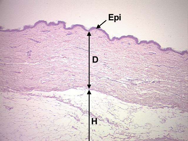 chapter 12 page 4 histologyolm 4 0 epidermis diagram