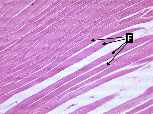 microscopic study of skeletal muscle, long (10x) | histologyolm, Muscles