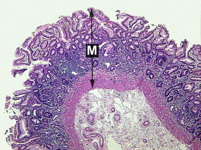 Stomach Tissue http://stevegallik.org/sites/histologyolm.stevegallik.org/htmlpages/HOLM_Chapter03_Page05.html